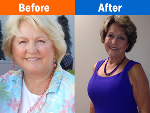 Weight Loss Edgewood MD Before and After at Stat Weight Loss