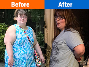 Weight Loss Before and After at Stat Weight Loss