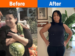 Weight Loss Edgewood MD Before and After