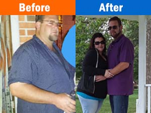 Weight Loss Edgewood MD Patient Before and After