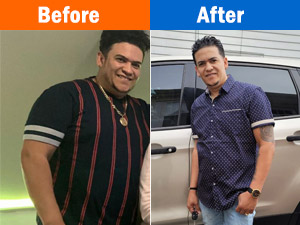 Weight Loss Edgewood MD Patient Testimonial